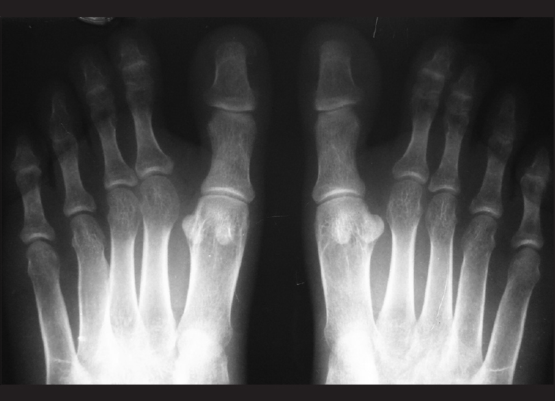 Figure 9: X-ray anteroposterior view of feet: X-ray of both feet showed soft tissue fusion of 2<sup>nd</sup> and 3<sup>rd</sup> toes suggesting syndactyly on both sides. Bilateral widening of tarsals and metatarsals with aplasia of middle phalanx of 5<sup>th</sup> toe seen