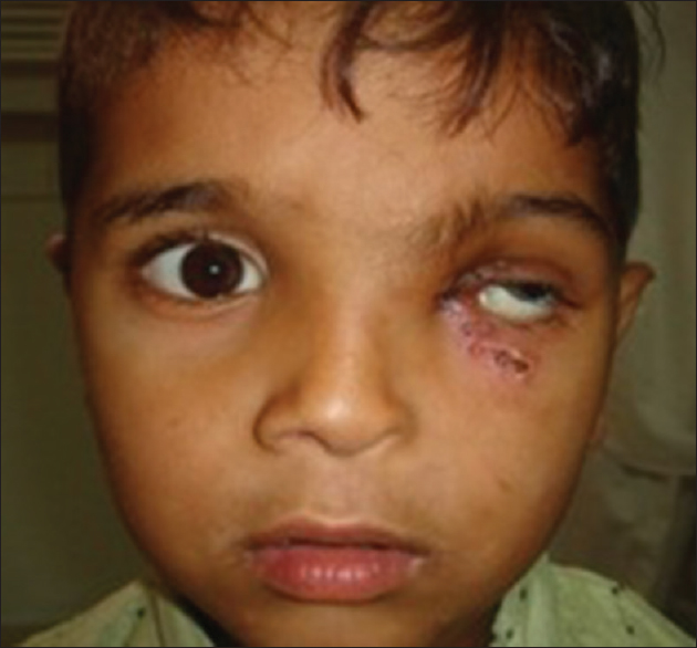 Figure 3: The left eye of the patient is hypertrophic after surgery (2 weeks postoperative)