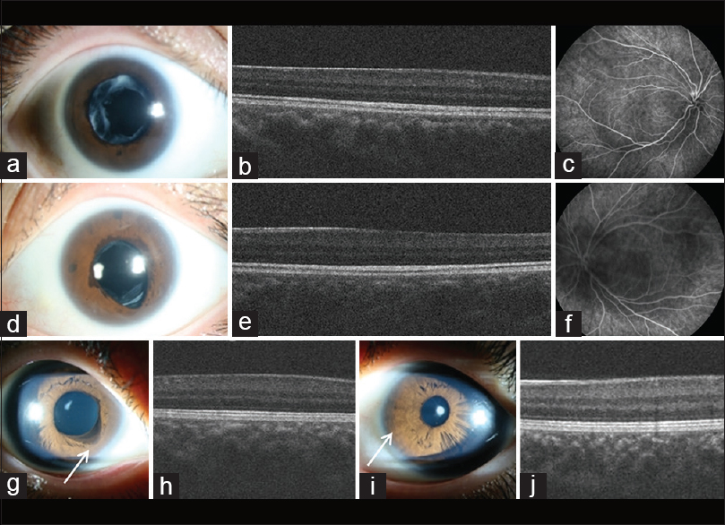 Figure 1: Right eye of the woman with circumferential iris ectropion (a), foveal hypoplasia (b), and absence of foveal avascular zone in fluorescein angiography (c). Left eye of the woman with circumferential iris ectropion (d), foveal hypoplasia (e), and absence of foveal avascular zone in fluorescein angiography (f). Right eye of her son with focal iris ectropion on inferonasal area (arrow) (g), foveal hypoplasia (h). Left eye of her son with a smooth cryptless iris surface on nasal area (arrow) (i), foveal hypoplasia (j)