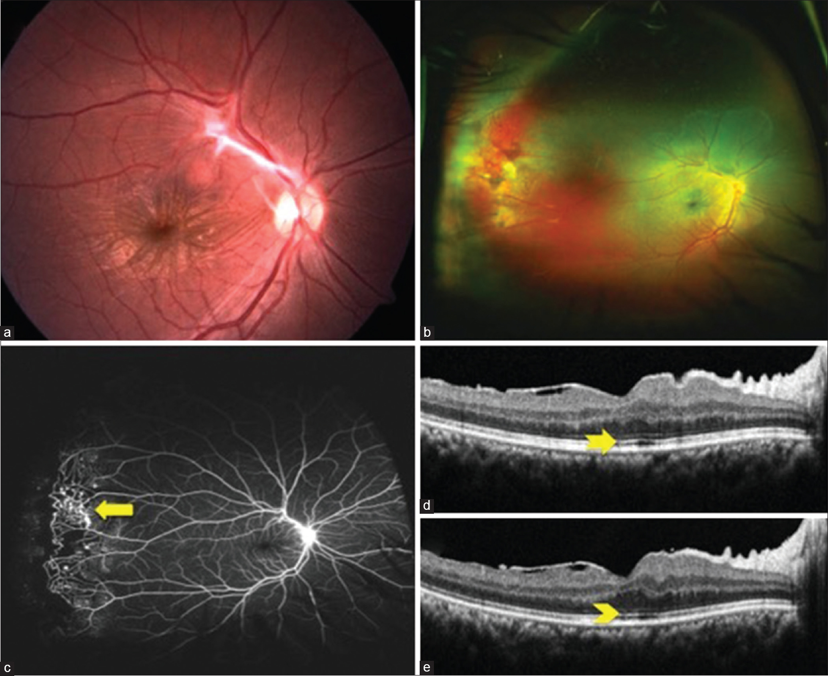 Figure 1 A Color Fundus Photograph Of The Right Eye 38 Year Old Man With Epiretinal Membrane Along Supertemporal Arcade B Ultra Wide Field