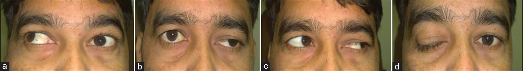 Figure 1: Clinical photograph showing aberrant regeneration 6 months after trauma. (a) Inverse Duane sign: Elevation of the left eyelid with ipsilateral adduction, (b) primary gaze picture showing moderate ptosis in the left eye, (c) left gaze, (d) Pseudo-Von Graefe sign: Elevation of ptotic left eyelid on attempted downgaze