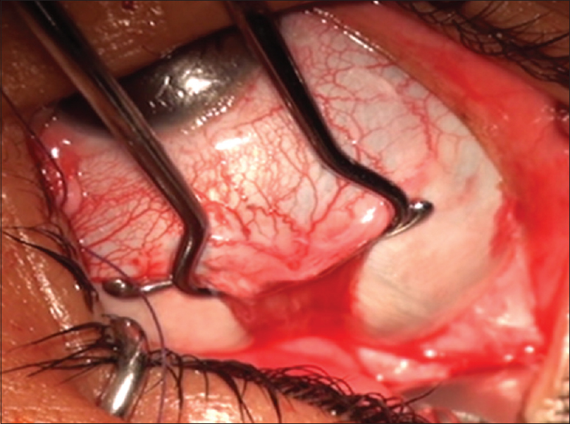 Figure 4: Intraoperative photograph of the right eye showing the tight lateral rectus muscle indenting the globe