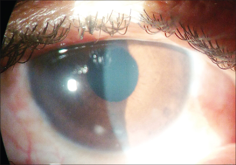 Figure 3: Clear cornea 1 week after foreign body removal