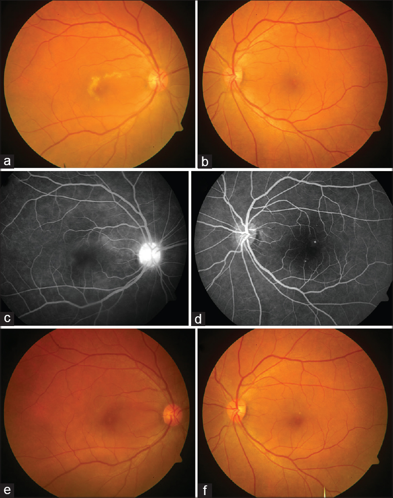 Figure 1: Serial fundus photography of the patient with dengue acute macular neuroretinopathy. (a) Colored fundus photograph of the right eye at baseline shows a grayish-yellow lesion with granular appearance and irregular borders surrounding fovea. (b) The left eye had the presence of a few hard exudates and one visible microaneurysm. (c) The late-phase angiogram of the right eye shows ill-defined faint hyperfluorescence in the perifoveal region along with disc staining. (d) The late arteriovenous phase angiogram of the left eye shows the presence of a few microaneurysms. (e) Colored fundus photograph of the right eye at 6-month follow-up shows near complete resolution of the grayish-white macular lesion, while the left eye shows some residual hard exudates with improvement in foveal transparency (f)