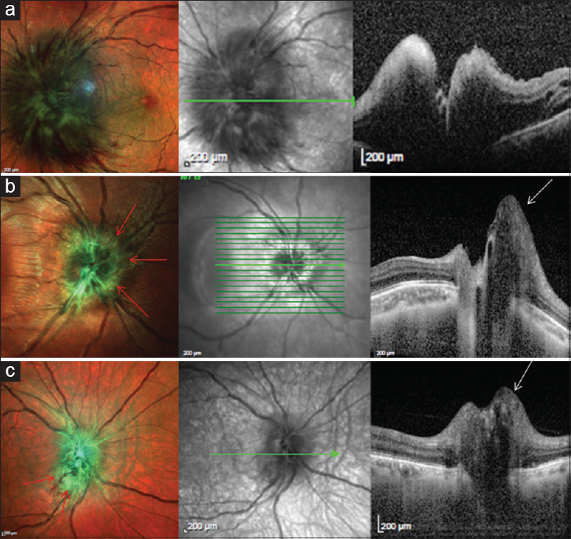 Figure 6: Multicolor and spectral domain optical coherence tomography images of the optic nerve head. Uniform green intensity noted in global disc edema (a) while multicolor images (b and c) show increased intensity (red arrows) at points of maximal edema and elevation (white arrows), respectively