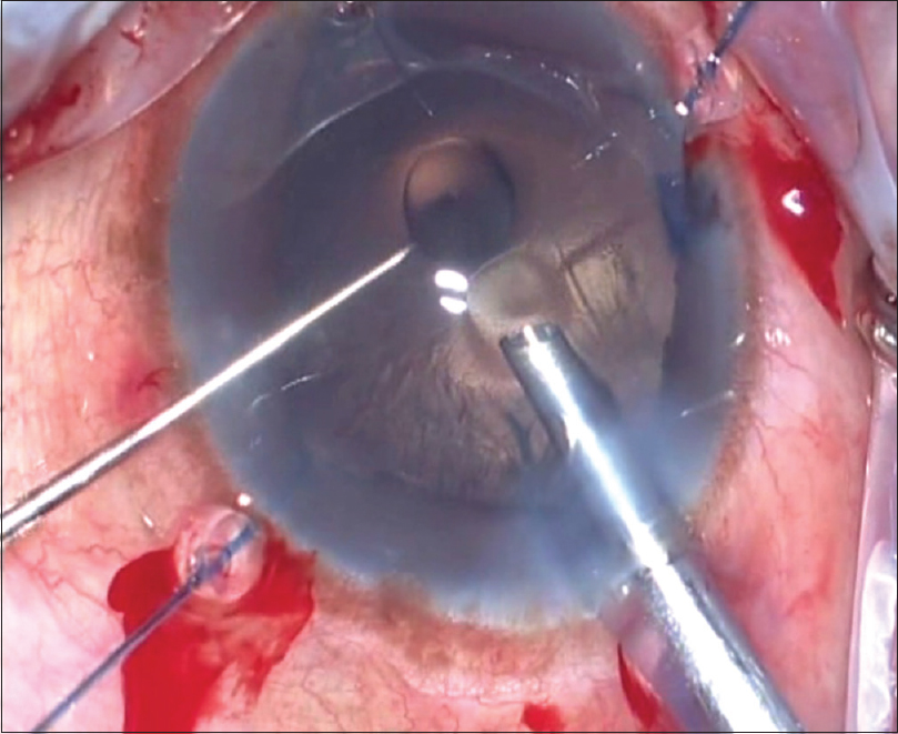hindu singles in cataract Ocular surgery news india edition   gvs murthy in india, nearly 74% of adults  60 years and older have cataracts or have undergone cataract surgery,.
