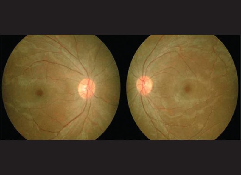 Figure 1: Color fundus photograph showing normal discs, attenuated vessels, retinal pigment epithelial mottling, and suspicion of cystoid macular edema
