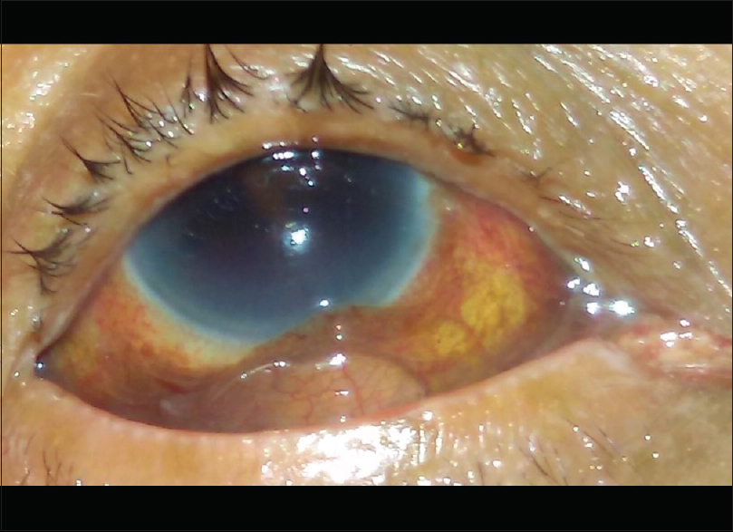 Inferior subconjunctival dislocation of posterior chamber ...