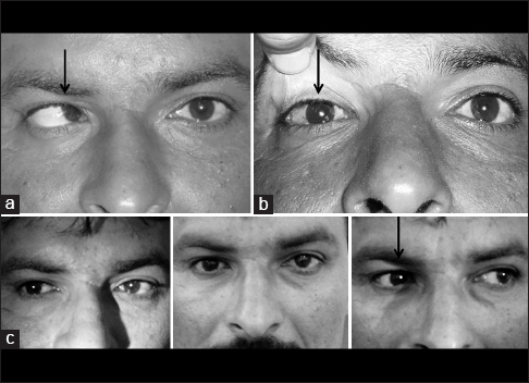 Figure 3: The photographs show another large angle esotropia. The preoperative (a) the immediate postoperative (b) and the late postoperative motility of the operated right eye. Note that the motility (c) in the right eye after the muscle transplantation surgery