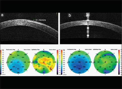 Figure 1: (a) Anterior segment optical coherence tomography (Optovue, Inc., USA) reveals a hyperreflective zone in the area of flap loss, 81 μ from the epithelial surface, (b) regularization of the epithelial surface 6 months postoperatively along with disappearance of hyperreflective layer