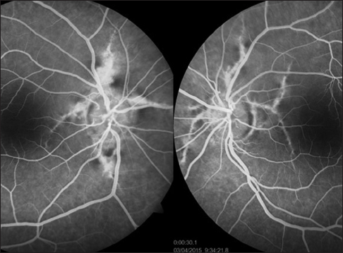 Figure 3 Fluorescein Angiography Showing Linear Hyperfluorescent Streaks Radiating From The Optic Disc In Both Eyes