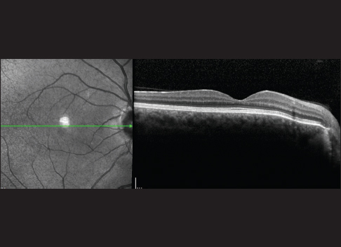 Figure 4: Normal optic coherence tomography assessment in macula of the right eye