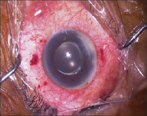 Figure 1: Conjunctival congestion, hypopyon, and inflammatory membrane in the right eye following dexamethasone intravitreal implant