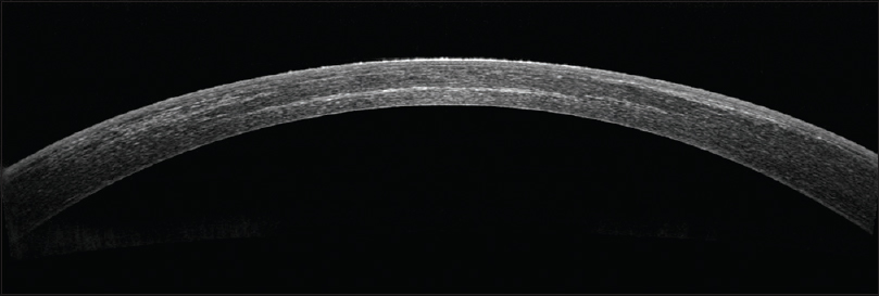 Figure 2: Anterior segment optical coherence tomography demonstrating a well-apposed flap and the demarcation line in a case of femtosecond LASIK with half-fluence accelerated cross-linking