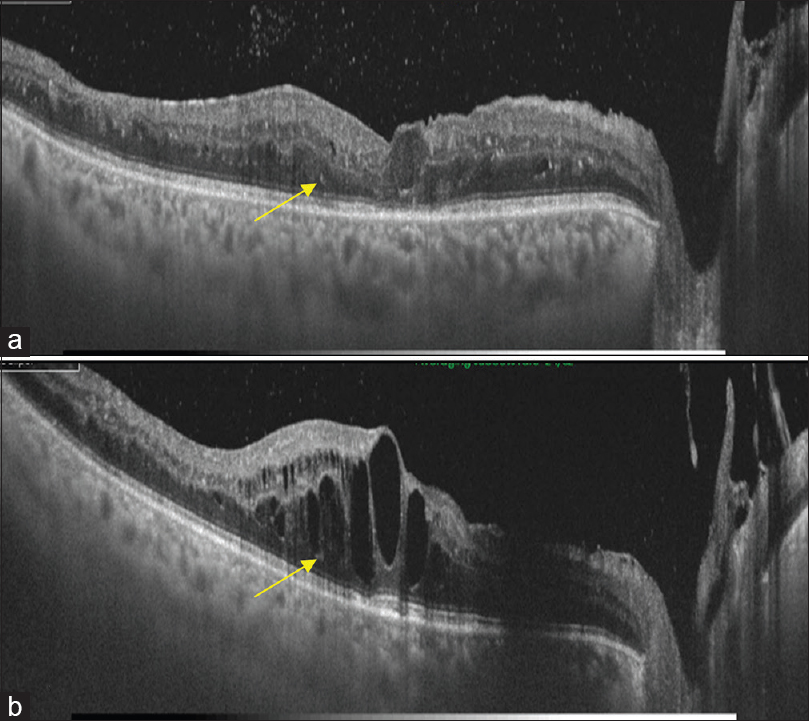 guide to optical coherence tomography interpretation