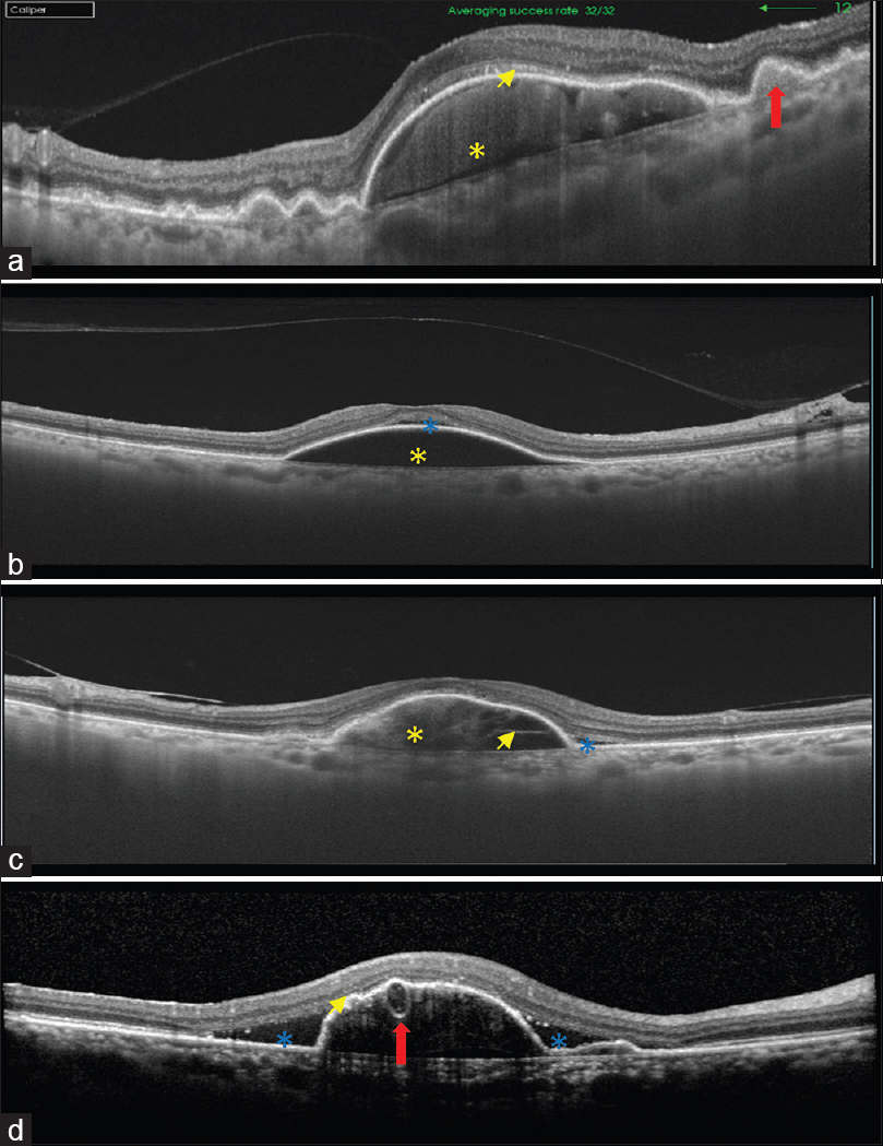 Optical coherence tomography: A guide to interpretation of