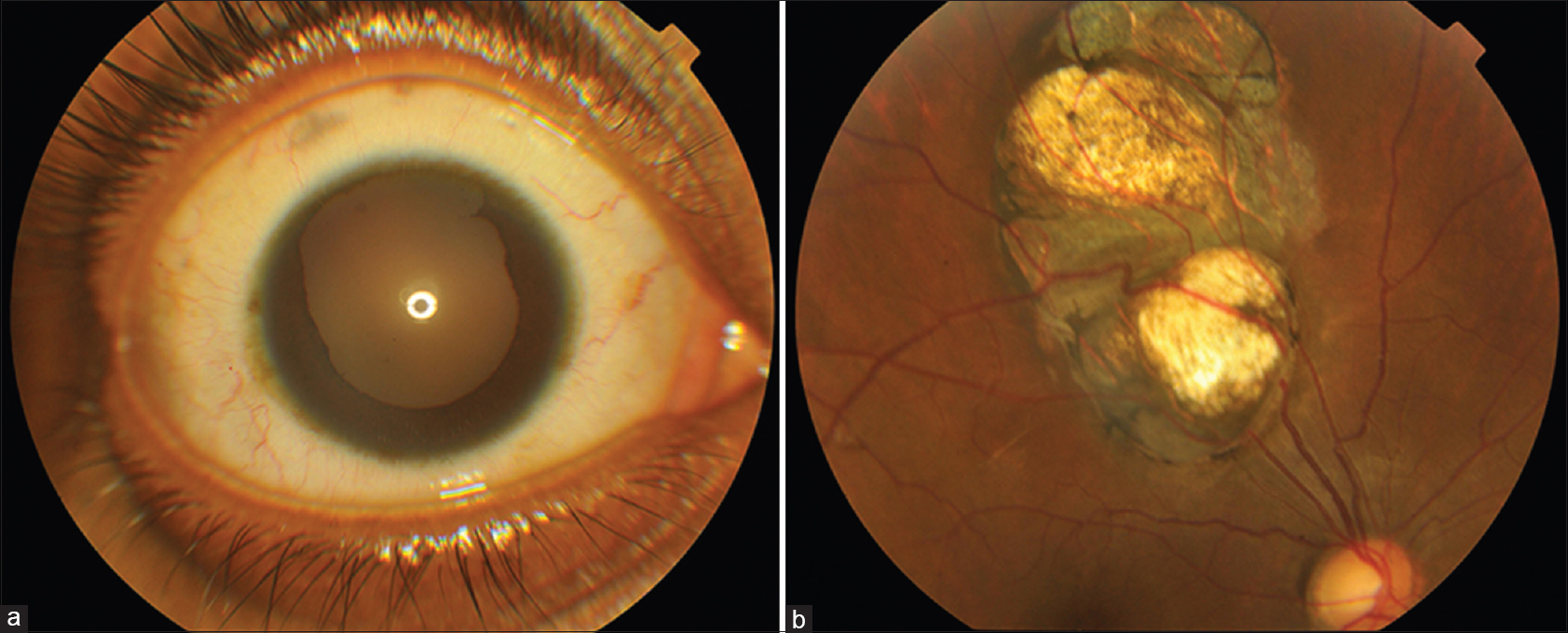 Atypical superior iris and retinochoroidal coloboma Jain AM