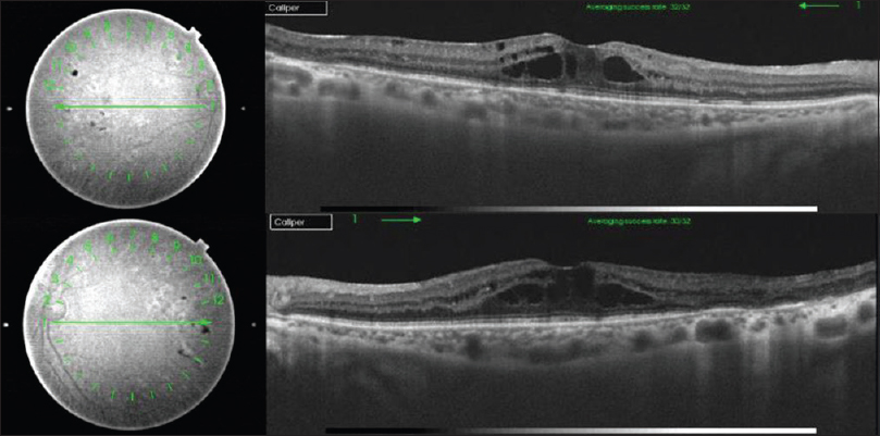 Figure 2: Swept-source optical coherence tomography image at presentation. Note the cystoid macular edema with the corresponding OCT fundus image in the right eye (top) and the left eye (bottom)