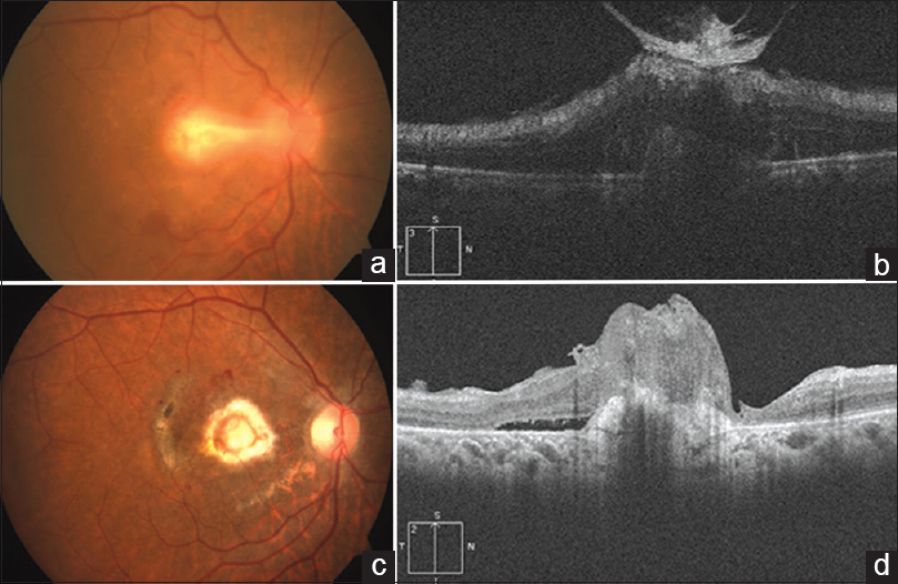 Figure 1: (a and b) Preop fundus photo shows active retinochoroiditis lesion involving macula; OCT shows increased reflectivity in inner retinal layers with epiretinal membrane (ERM) and vitreomacular traction. (c and d) Postop fundus photo shows scarred CNVM; OCT shows hyperreflective lesion in subretinal space suggestive of scarred CNVM with residual SRF