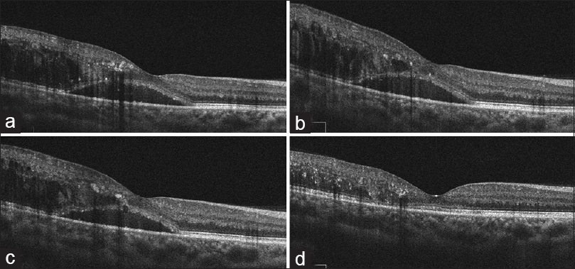 Figure 2: OCT findings of the patient at baseline and after treatment. (a) Baseline OCT image demonstrates subretinal and intraretinal fluid involving the fovea, with hard exudate seen as intraretinal hyperreflective dots. (b) OCT image 1 month after IVB injection shows no improvement in macular edema. (c) OCT image 1 month after the second IVB injection shows mild regression of the macular edema. (d) The treatment was switched to IVTA. OCT image 1 month after IVTA shows prominent improvement of macular edema