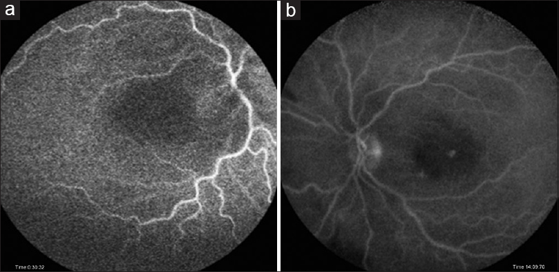 Figure 2: Fundus fluorescein angiography of both eyes (a and b) after 96 hours of loss of vision shows delayed arteriovenous filling with possible partial perfusion in the cilioretinal artery distribution