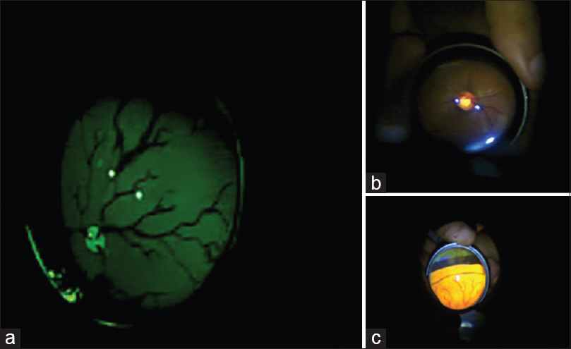 Figure 2: (a) Red free image of the fundus of a model eye. (b) A normal optic disc imaged in a patient. (c) Peripheral retina imaged in a model eye