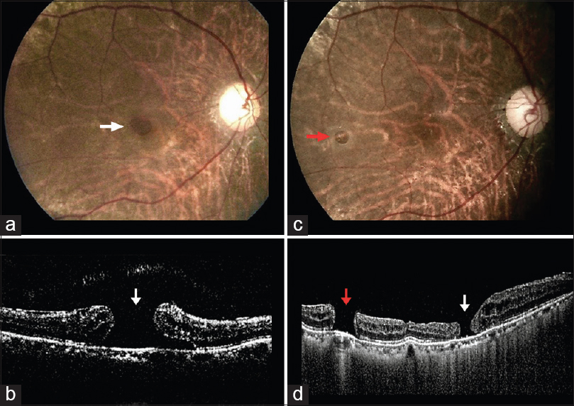 Figure 1: Preoperative colour fundus photograph (a) and optical coherence tomography (b) showing a large macular hole with coexisitng epiretinal membrane. Postoperative colour fundus photograph (c) and optical coherence tomography (d) revealed a secondary paracentral retinal hole with reduction in size of the macular hole