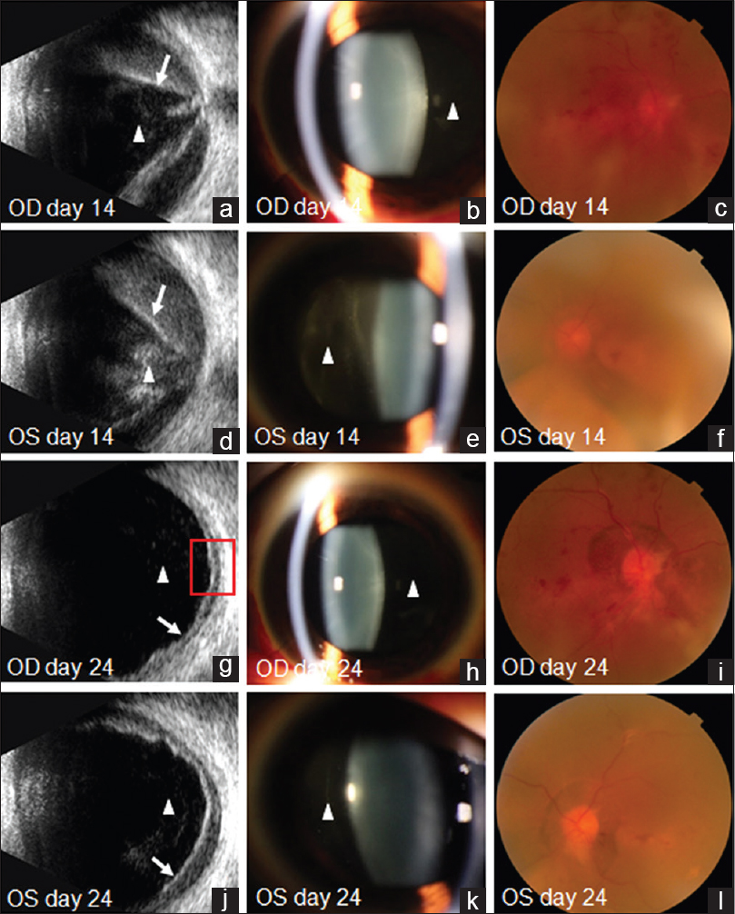 Figure 2: The images at day 14 (a–f) and day 24 (g–l) after imatinib treatment, the particles in vitreous (triangles in a, b, d, e, g, h, j and k), retinal hemorrhages and detachments (arrows in a, d, g and j) were dramatically relieved. The optic clarity at day 24 (i and l) was much more improved than that of day 14 (c and f). With subretinal hemorrhage drainage, the retinal detachment in right eye recovered faster and more complete than the left eye