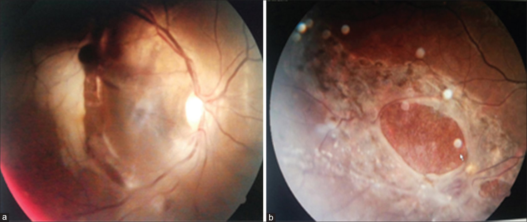 Figure 1 A Fundus Photograph Showing Choroidal Rupture B Silicon Oil Filled Eye Following Retinal Surgery