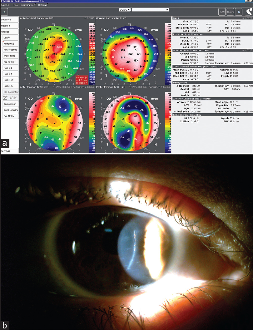 Cornea and anterior eye assessment with placido-disc