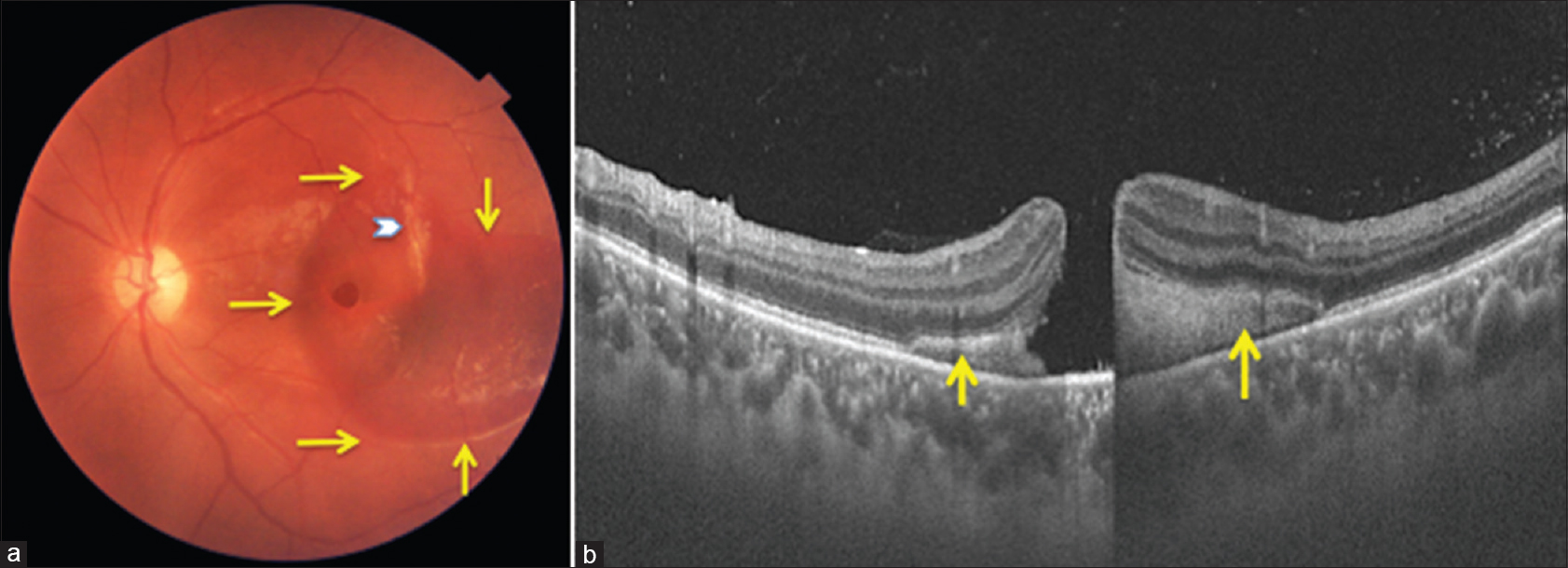 Figure 1 A Color Fundus Photograph At Presentation Shows Full Thickness Macular Hole Subretinal Hemorrhage Extending Across The Fovea Extent Marked By