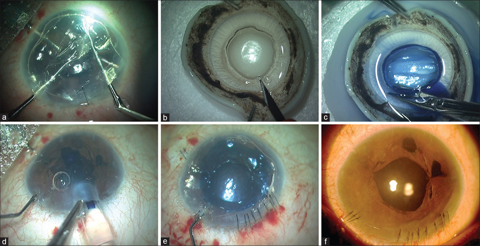 Figure 2: The combined procedure of phacoemulsification with single-pass four-throw with pre-Descemet's endothelial keratoplasty. (a) Descemetorhexis is done. (b) Type 1 bubble is formed. (c) The graft is stained with trypan blue. (d) The graft is injected. (e) The graft is unrolled using air and fluidics. (f) Postoperative image at 3-month follow-up