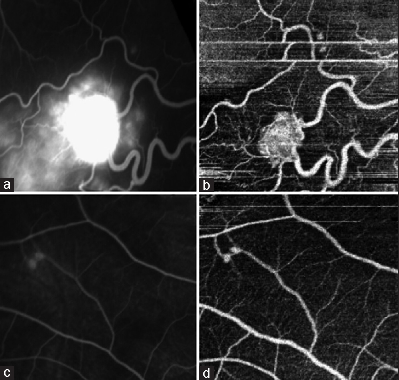 Figure 2: Case 2 – (a) Fundus fluorescein angiography of a large retinal capillary hemangioblastoma and small retinal capillary hemangioblastoma. The large tumor is ill defined due to leakage. Multiple hyperfluorescent satellite lesions around the large retinal capillary hemangioblastoma can be seen which would give a false impression of multiple tiny tumors, (b) optical coherence tomography angiography of the lesion in Figure 2a. Margins of the tumor are well defined compared to fundus fluorescein angiography. The small retinal capillary hemangioblastoma is identifiable even in optical coherence tomography angiography. Due to motion artifact duplication of tumor is seen, (c) fundus fluorescein angiography of a paired retinal capillary hemangioblastoma. The feeder and the draining vessels and communication between the tumors are seen, (d) optical coherence tomography angiography of the lesion in Figure 2c. The feeder and the draining vessels and the communication are more distinct than fundus fluorescein angiography