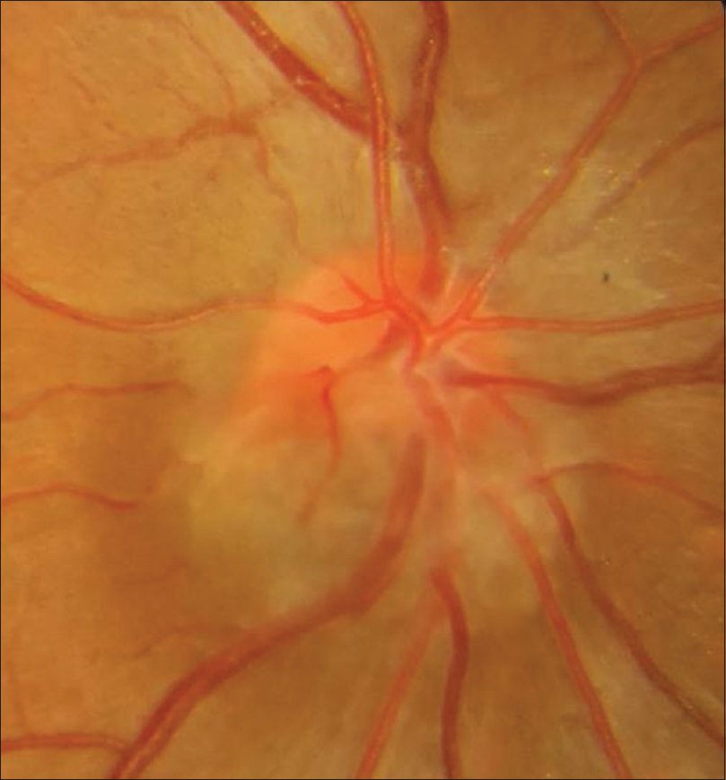 Figure 6: Case 4 – Colour photograph showing greyish, horizontally oval lesion obscuring the inferior one third of optic disc