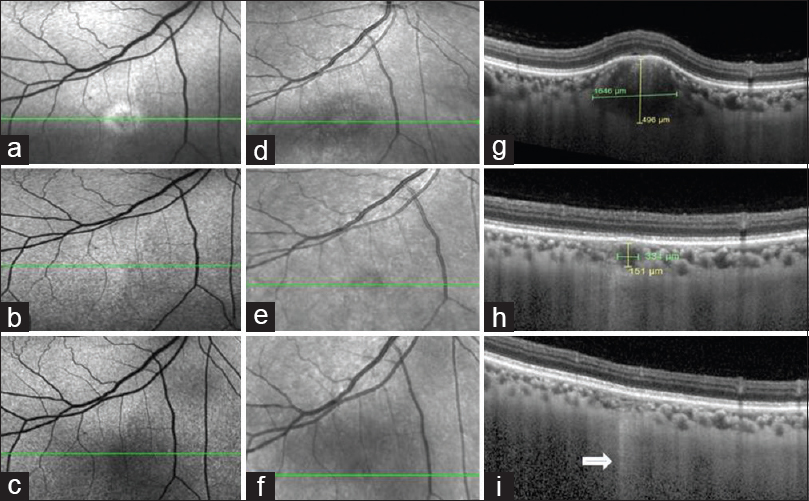 Figure 3: Multimodal imaging of the right eye at presentation, 2 months, and 9 months posttreatment is shown in the top, middle, and bottom rows, respectively. On fundus autofluorescence imaging (a-c), the hyperautofluorescent lesion regressed to a faint isoautofluorescent scar. Near-infrared reflectance imaging (d-f) showed mildly hyperreflective lesion with a dark halo at baseline which regressed with treatment. Enhanced depth imaging spectral-domain optical coherence tomography scans (g-i) demonstrated resolution of the tubercle with treatment, restoring the normal choroidal architecture. Increased signal transmission effect was seen beneath the lesion (arrow)