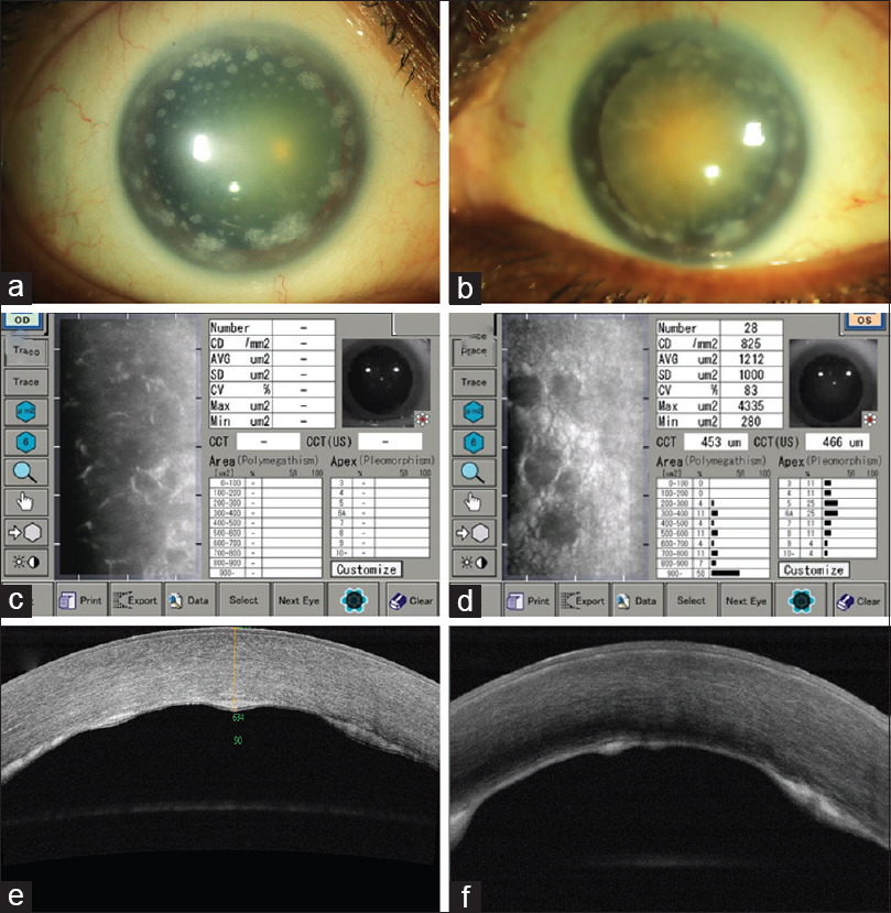 Figure 1: (a) Slit lamp photograph of the right eye showing whitish deposits at the peripheral cornea in a circumferential pattern; (b) slit lamp photograph of the left eye showing similar deposits in the left eye; (c) specular microscopy of the right eye showing a non-readable image in the right eye; (d) specular microscopy of the left eye showing reduced endothelial cell density, increased mean cell area and guttae; (e) anterior segment optical coherence tomography of the right eye showing thickened Descemet membrane and deposits at the posterior membrane level; (f) anterior segment optical coherence tomography of the left eye showing similar features as seen in the right eye
