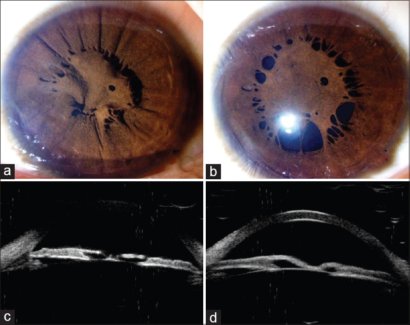 Ultrasound biomicroscopic appearance of accessory iris