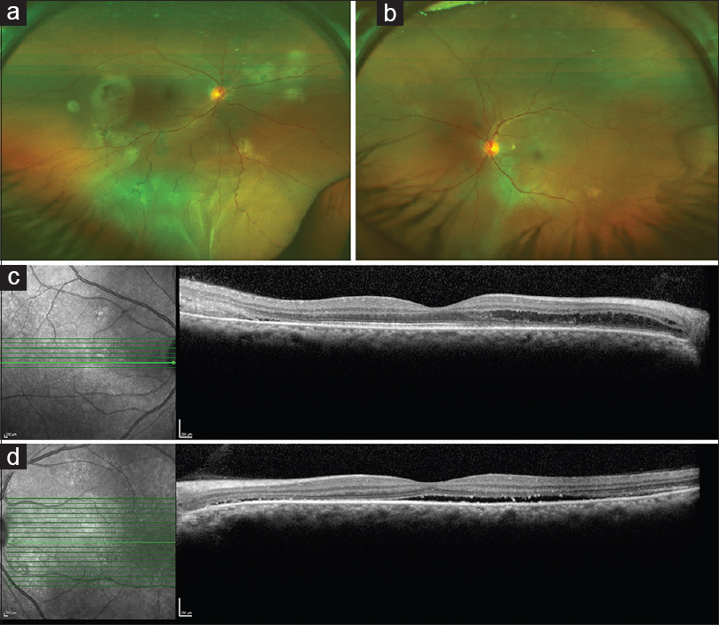 Figure 1: (a) Fundus photograph of the right eye showing multifocal areas of yellowish subretinal exudation with inferior exudative retinal detachment. (b) Fundus photograph of the left eye showing multiple variably sized grayish yellowish lesions with a loss of foveal transparency. (c) Optical coherence tomography line scan passing through macula of the right eye revealing outer retinal fluid nasally and subretinal hyperreflective deposits temporal to the fovea. (d) Optical coherence tomography line scan passing through the macula in the left eye showing the presence of a streak of subretinal fluid