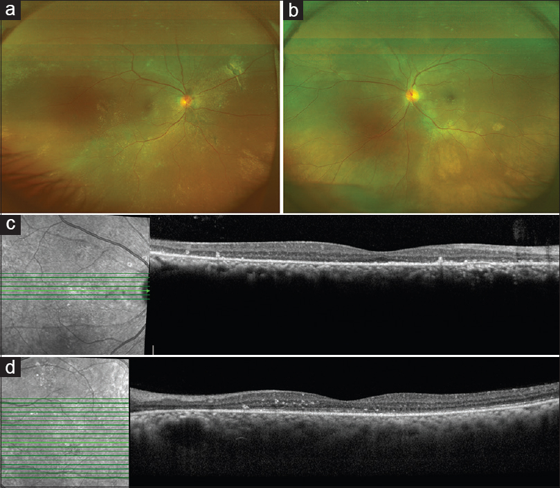 Figure 5: Follow-up after 12 weeks of therapy with oral eplerenone (25 mg once a day). Fundus photograph of the right eye shows complete resolution of the bullous exudative retinal detachment (a). Fundus photograph of the left eye (b) shows good retinal transparency and disappearance of the yellowish subretinal precipitates. Optical coherence tomography line scan passing through the fovea shows complete resolution of subretinal fluid in the right (c) and the left eye (OS) (d)