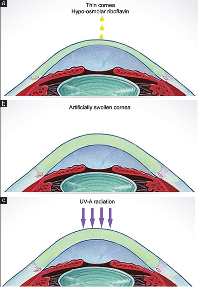 Figure 1: Collagen cross-linking using hypo-osmolar riboflavin. (a) Hypo-osmolar riboflavin instilled on the thin cornea. (b) Increased corneal pachymetry. (c) UVA radiation exposure given to the swollen cornea