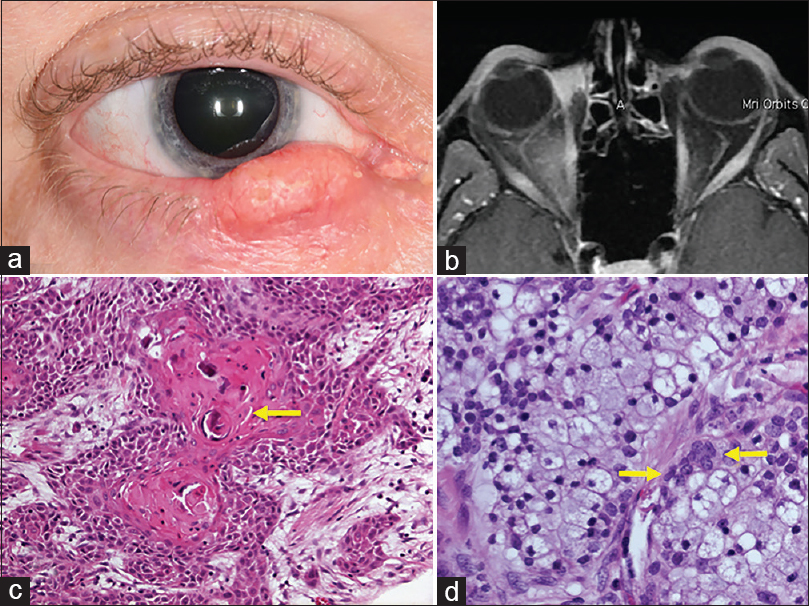 Figure 1: Firm mass in the right lower eyelid (a), measuring 20 mm in diameter and involving full-thickness eyelid. There was no orbital invasion on magnetic resonance imaging (b). Histopathology showed moderately differentiated invasive carcinoma (c) with predominant squamous differentiation and keratinization. Glandular areas with goblet cells (d, arrows) were identified within the tumor