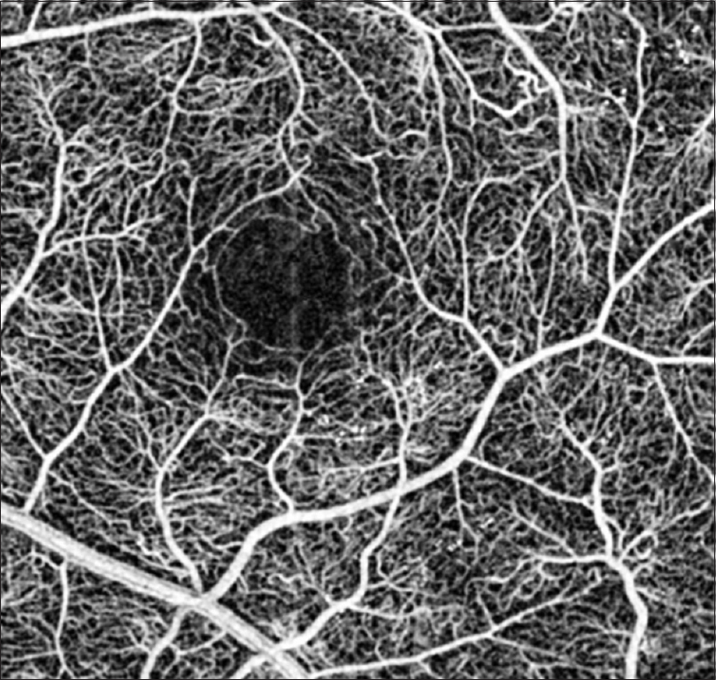 Figure 4: Capillary perfusion maps obtained without any contrast agent. The retinal microvasculature is well delineated