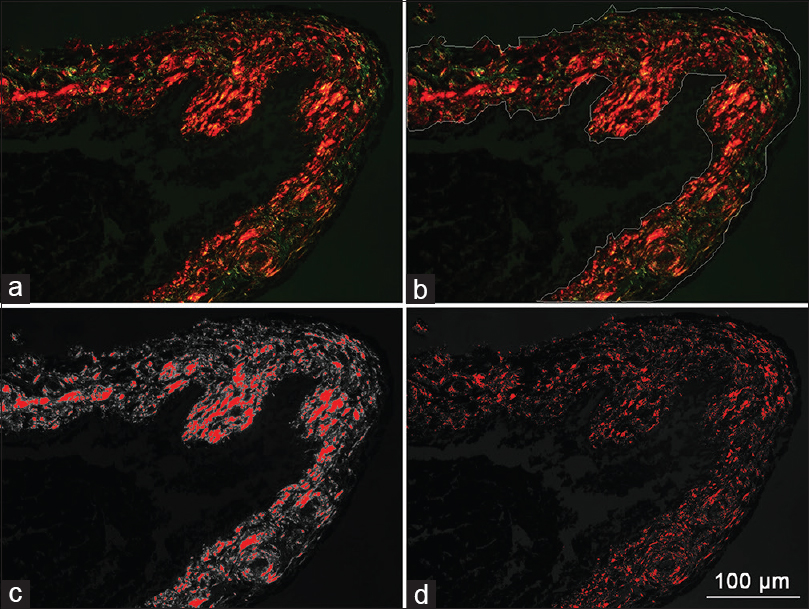 "Figure 3: Quantitative measurement of type I/type III collagen fibers by ImageJ. (a) Type I collagen fibers are recognized by their thick fibers and bright red or yellow staining, type III collagen fibers are characterized by their slender fibers and green staining. (b) The researcher manually drew the borders of the stained iris tissue. The total area of demarcated iris tissue is measured. (c and d) Type I and type III collagen fibers are differentiated by ""split channels"" in ImageJ due to their different colors. The morphometry of the cumulative areas of type I/type III collagen are measured"