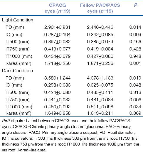 Table 3: Iris measurements of recruited eyes under light and dark conditions