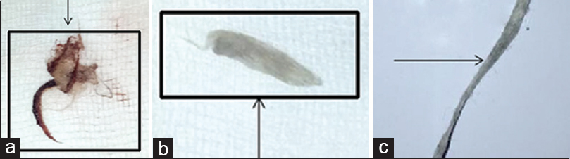 Figure 2: (a) A material removed from lower fornix and dissected with forceps. On microscopic examination, noted to be a cotton piece stained with red (<i>?kumkum</i>) and brown (<i>?coffee</i>) powder. (b) A fresh cotton piece removed from lower fornix second time. (c) A piece of cotton recovered from patient's pants pocket