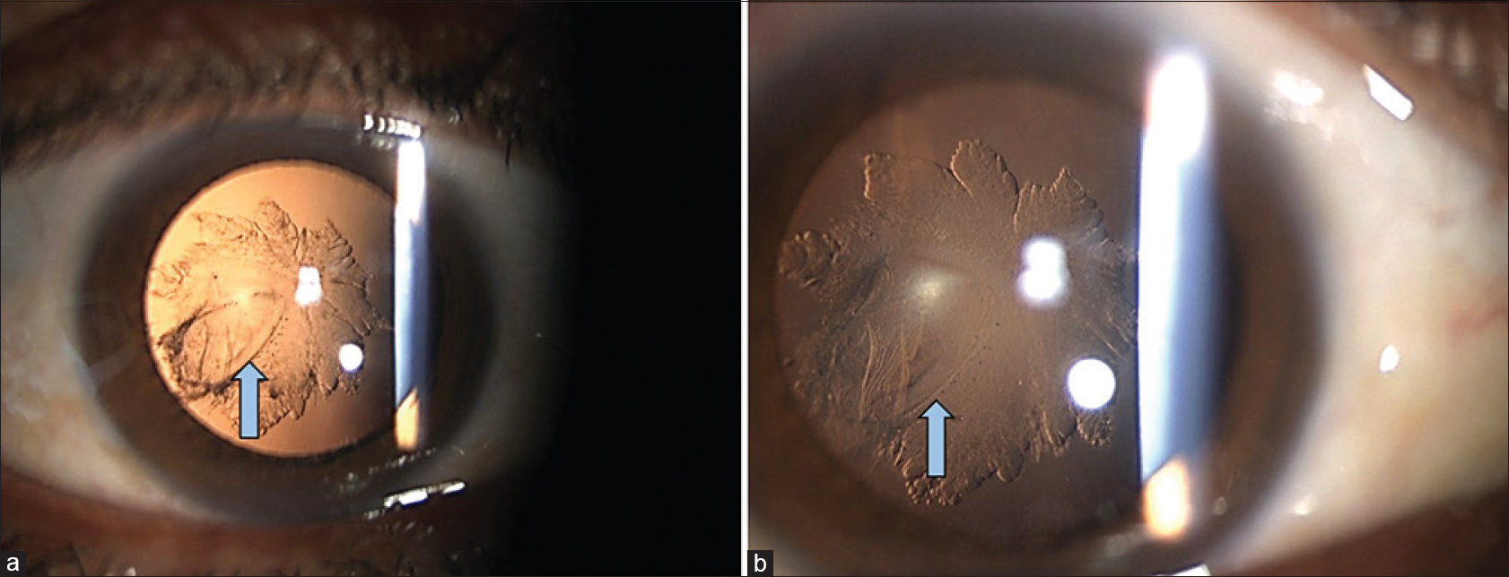 Figure 1: Retro-illumination images showing iatrogenic cataract and defect in posterior capsule (arrows, a). Rosette pattern is appreciable in high magnification images (b)