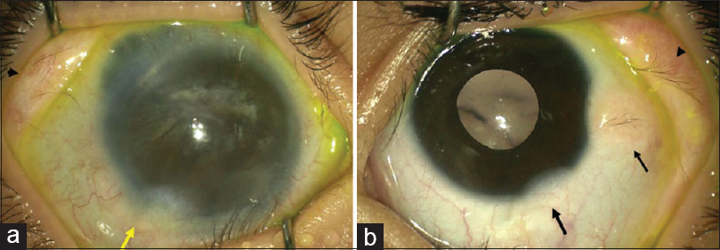 Figure 3: (a) Right eye photograph showing limbal dermoid in inferotemporal limbus (arrow), dermolipoma in superior conjunctiva extending upto the fornix (arrowhead) and intercalary staphyloma superiorly. (b) Left eye photograph showing two limbal dermoids in inferotemporal limbus (arrows), dermolipoma in superior bulbar conjunctiva extending upto the fornix (arrowhead)