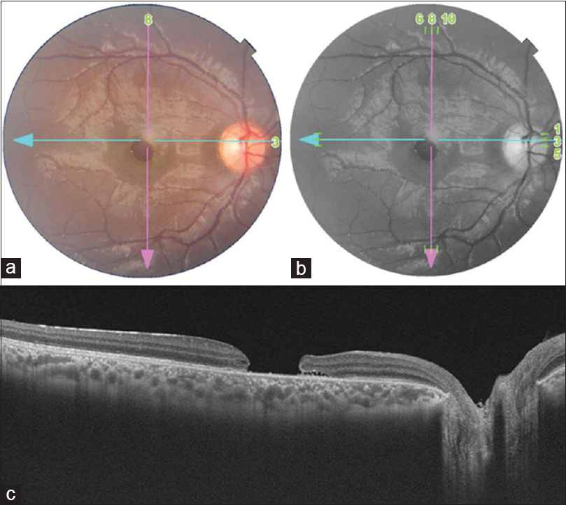 Figure 1: Preoperative fundus photograph and optical coherence tomography (OCT): (a and b) Colour and red-free fundus photo of right eye showing large diameter macular hole (c) OCT showing macular hole with relatively flat edges and no subretinal fluid