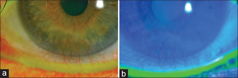 Figure 5: Left eye follow-up. Without staining (a) and with fluorescein (b), where mild superficial keratitis can be seen
