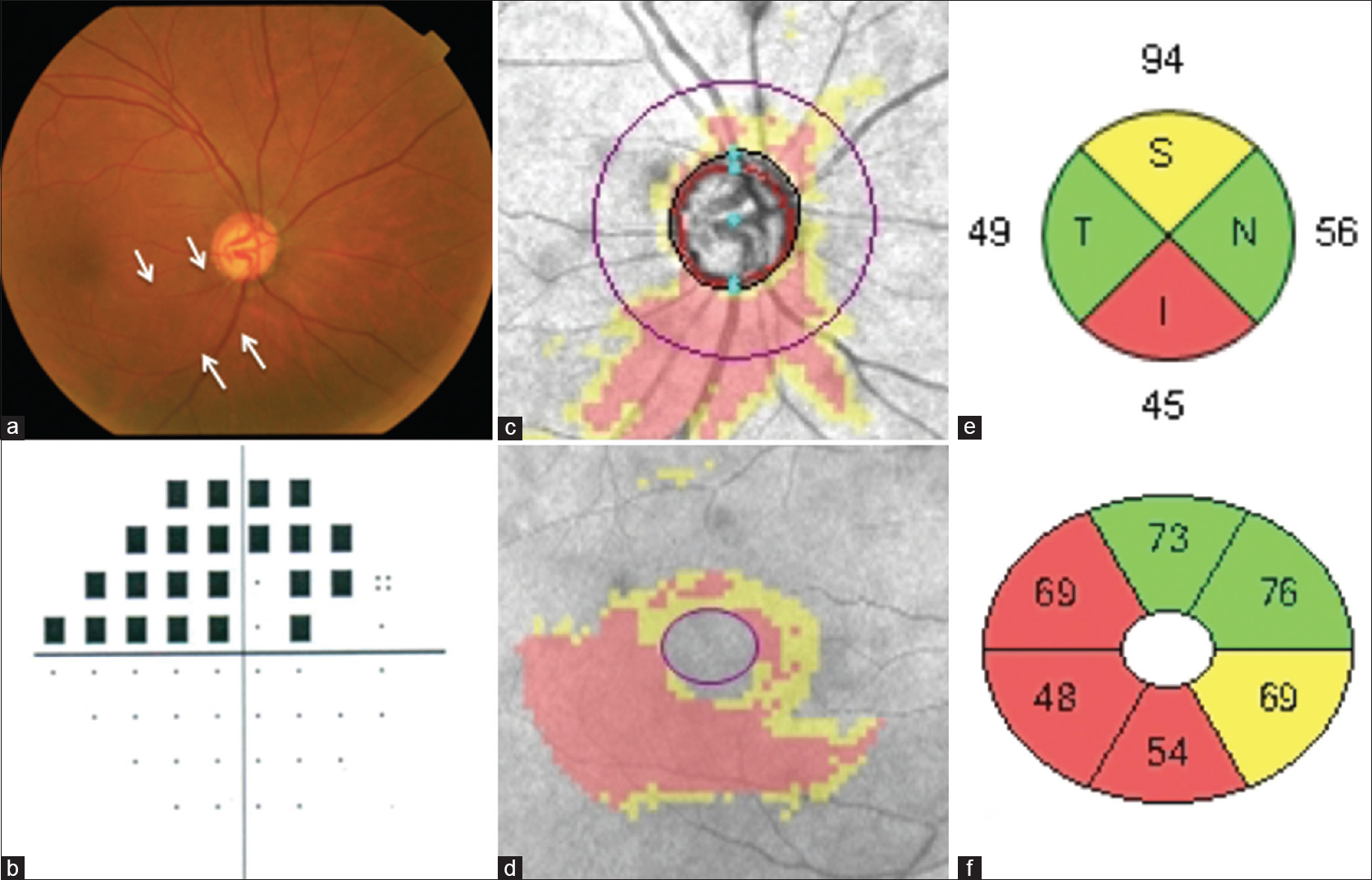 Figure 1: A 78-year-old male in the perimetric glaucoma group. (a) Fundus photography showing diffuse RNFL defect. (b) Superior visual field on automated perimetry. (c, d) Peripapillary RNFL and GC-IPL deviation maps showing thinning in superior and inferior region. (e, f) Defects on RNFL quadrant and GC-IPL sector analysis